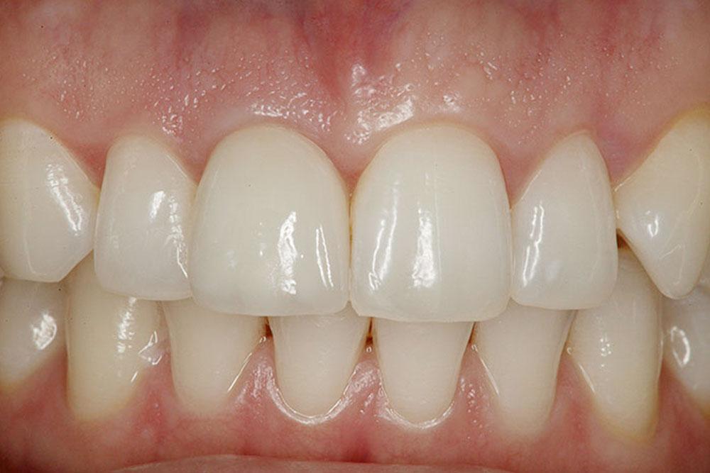 Zubni-implantati-posije-01