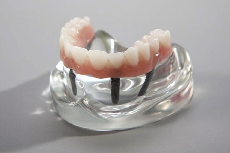 Zubni-implantati-posije-02