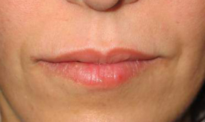 oblikovanje usana poslije
