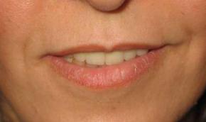 oblikovanje usana prije