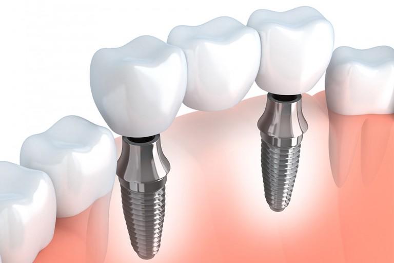 proizvodjaci-implantata-mala2