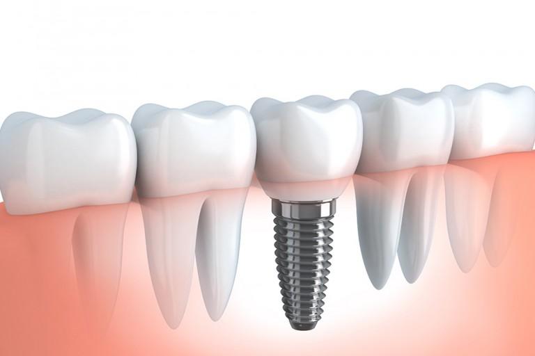 proizvoodjaci-implantata-mala1